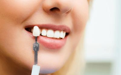 Clareamento dental: o que você precisa saber antes de fazer o seu