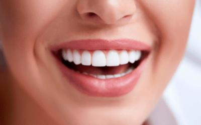 Qual é o segredo para um sorriso perfeito?