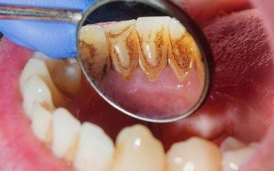 3 sinais de que você precisa consultar um dentista