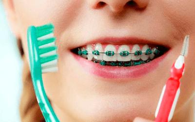 6 dicas para te ajudar na manutenção do aparelho ortodôntico