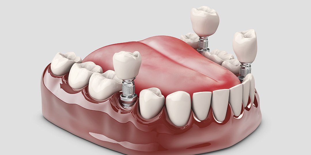 Implante de dente: como é feito, tipos e valores